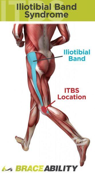 IT band avoid knee pain running