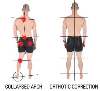 Runner's knee pain alignement