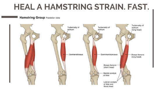 Heal a hamstring strain fast with massage Romford