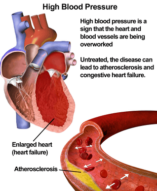 Lower blood pressure with massage
