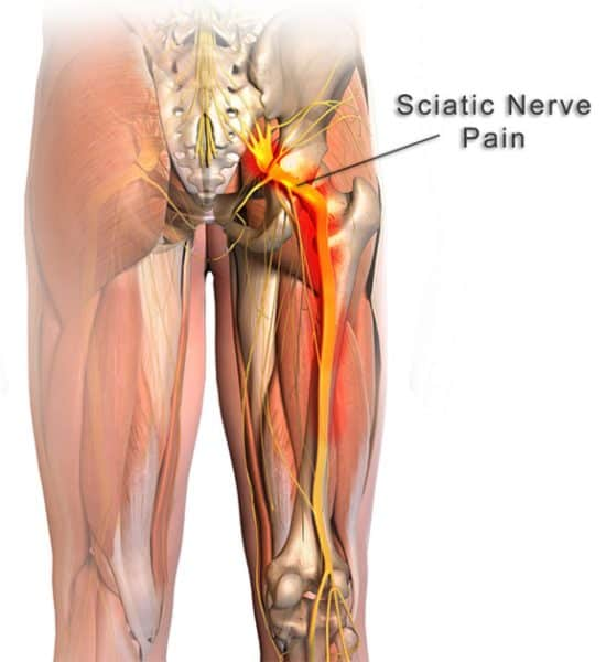 Lower back pain due to tight glutes and hamstrings