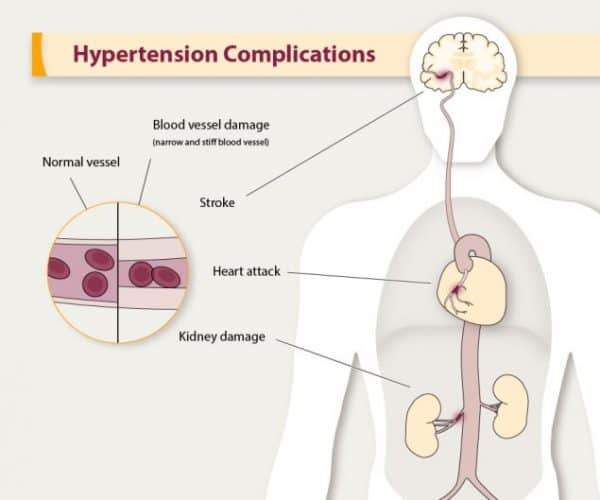 hypertension and lowering high blood pressure