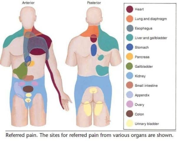 Lower back pain caused by referred pain