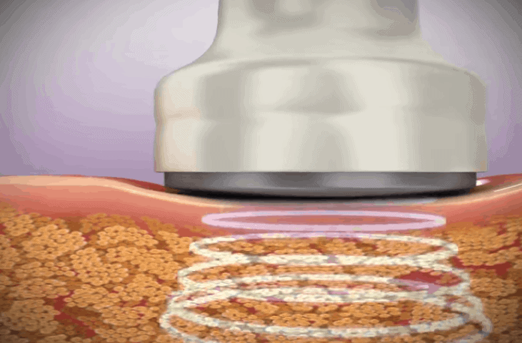 how radiofrequency radio frequency rf cavitation therapy works