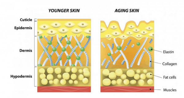 How skin deteriorates with age in terms of collagen and elastin production