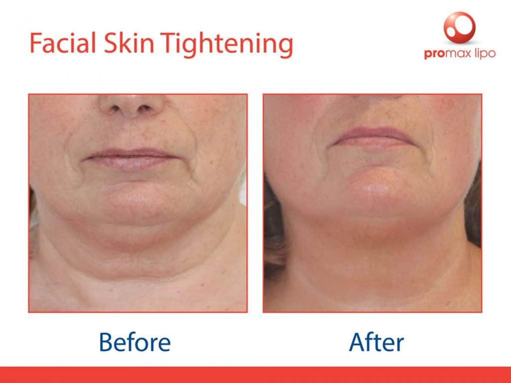 radiofrequency facial before and after